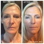 Dermal Fillers Windham Before and After Picture