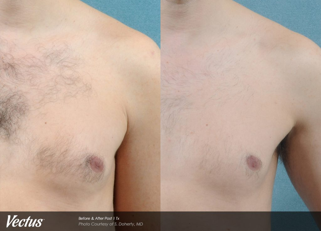 Laser Hair Removal Windham - Before and After