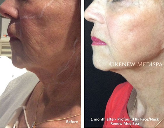 Skin Tightening Windham, NH Before and After Picture